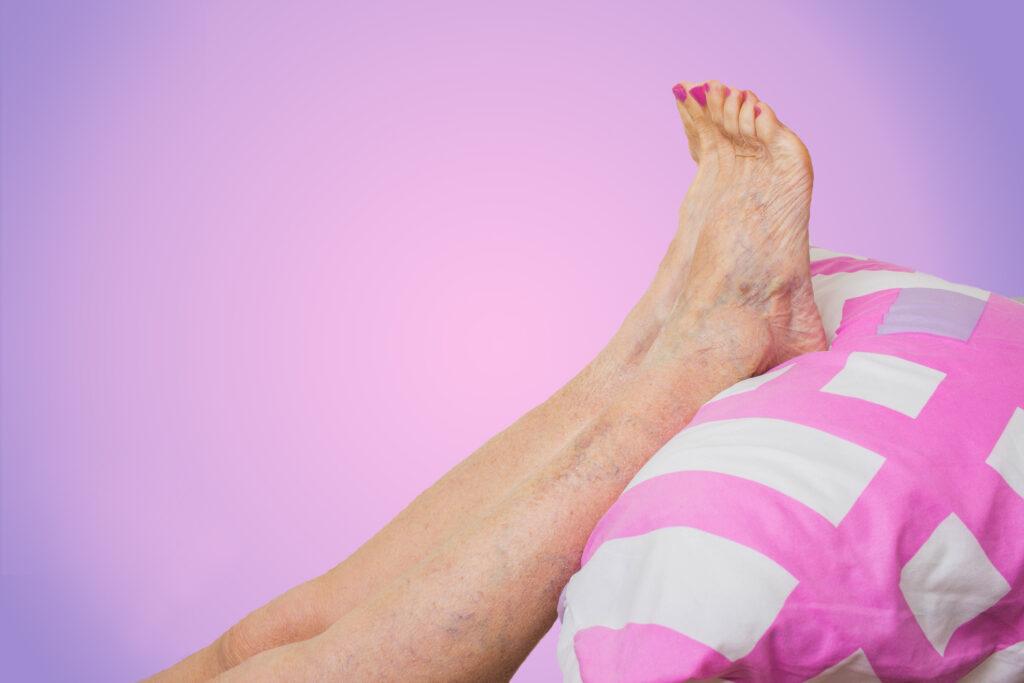 Aixeca les cames per prevenir les varices