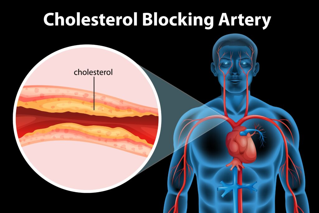 homeopatía colesterol